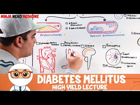 What is the Difference Between Type I and Type II Diabetes Mellitus | High Yield