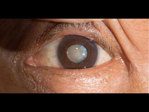 Retinopatía diabética y otros problemas de visión en la diabetes