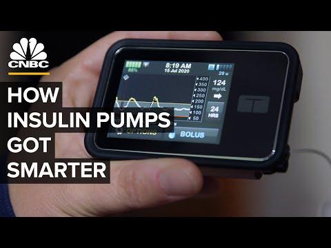How High-Tech Insulin Pumps Make Managing Diabetes Easier