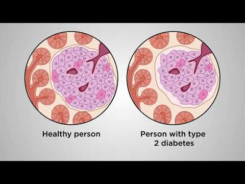 Beyond Glucose: a beta-cell centric approach to prevent Type 2 Diabetes